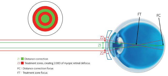 MiSight lenses offer a simple way to treat the progression of myopia